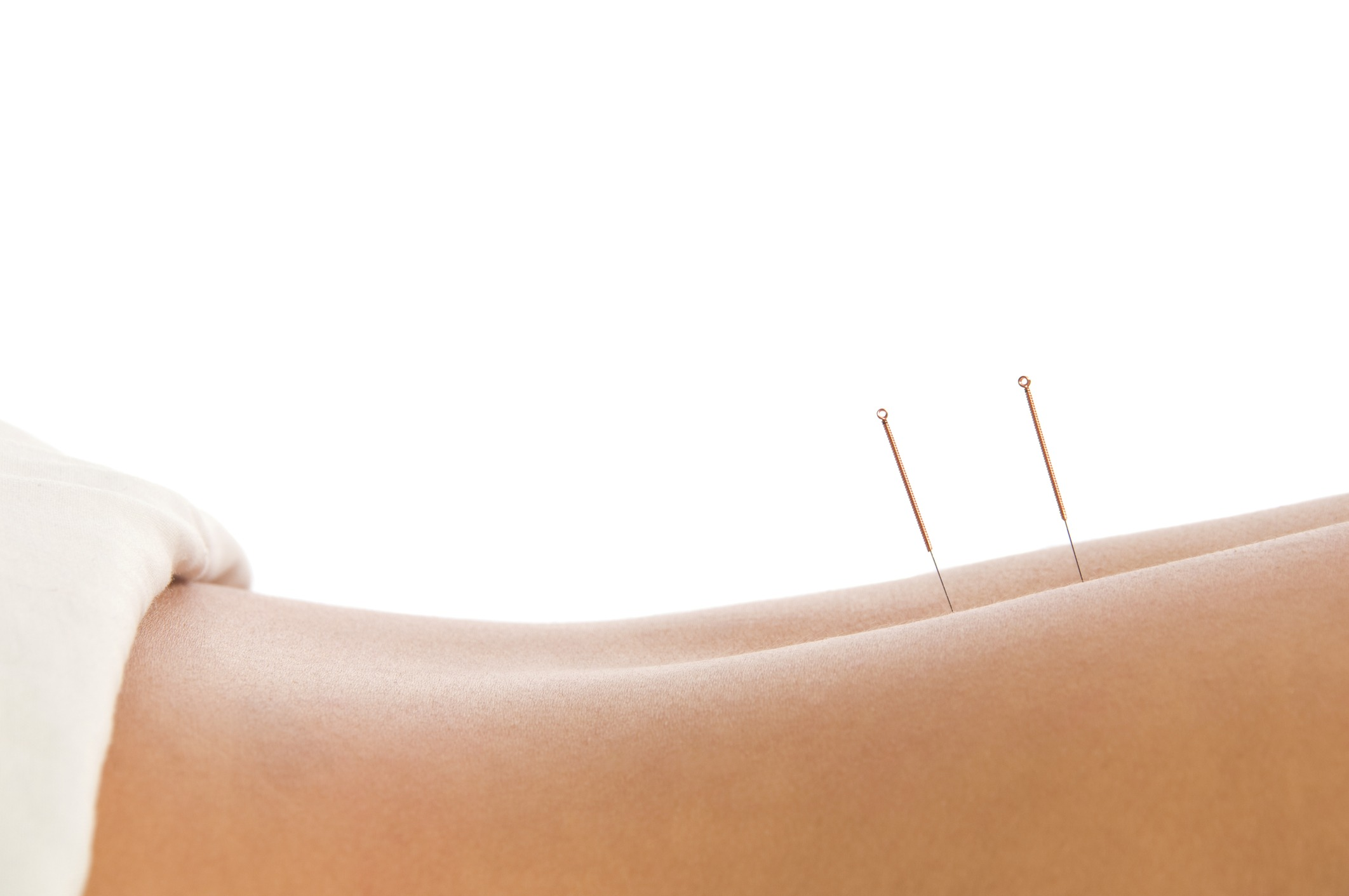 Acupuncture-Treatment-Feel-Good-Acupuncture-Bristol